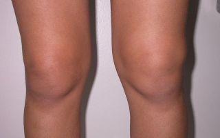 Синовит стопы: симптомы и лечение заболевания суставов