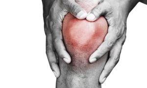Боли при ревматоидном артрите: как избавиться от боли в мышцах и суставах