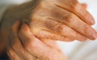 Обострение ревматоидного артрита: причины, симптомы и методы лечения