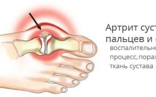 Артрит мелких суставов кистей рук и стоп: причины и лечение