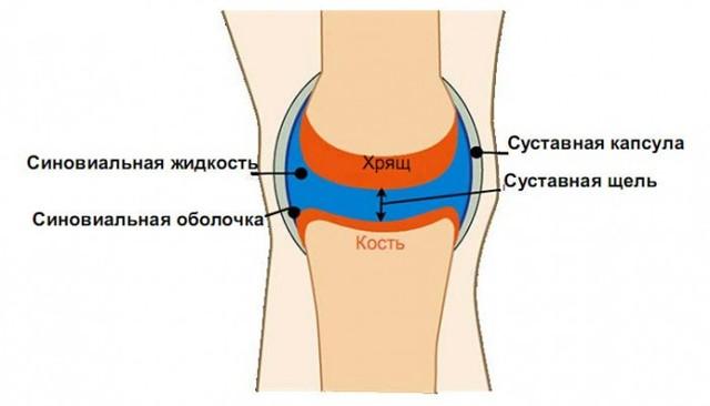 Препараты при артрозе коленного сустава: список эффективных лекарств