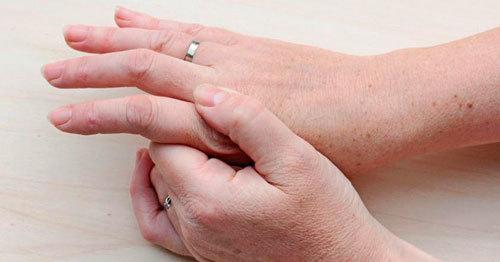 Ремиссия артрита: сколько длится и как добиться ослабления болезни