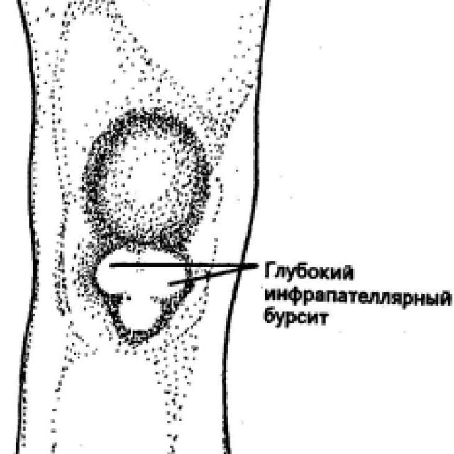 Инфрапателлярный бурсит коленного сустава: симптомы и лечение подколенного бурсита