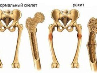 Остеопороз у детей: симптомы и лечение заболевания костей у ребенка