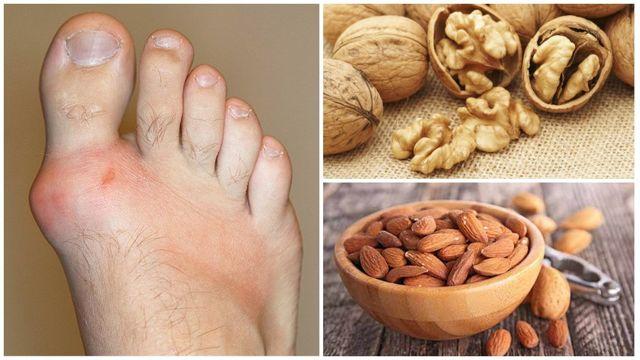 Можно ли орехи при подагре: какие орехи полезны