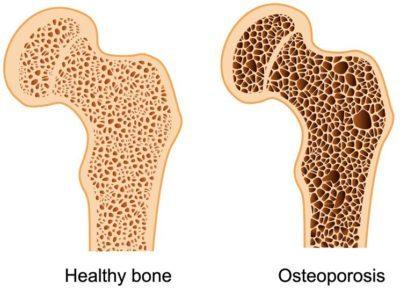Остеопороз у пожилых людей: симптомы и лечение, последствия и профилактика