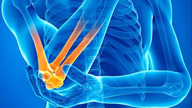 Мази и гели при артрозе коленного сустава: как выбрать эффективное средство