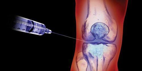 Уколы при артрозе коленного сустава: эффективные препараты для инъекций