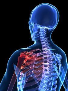 Субакромиальный бурсит плечевого сустава: причины, симптомы и методы лечения