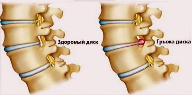 Чем опасен шейный остеохондроз: можно ли умереть, последствия и осложнения