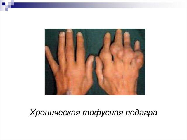 Дают ли инвалидность при подагре в России: как получить группу