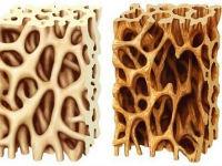 Остеопороз 1 степени: причины, лечение, прогноз на выздоровление