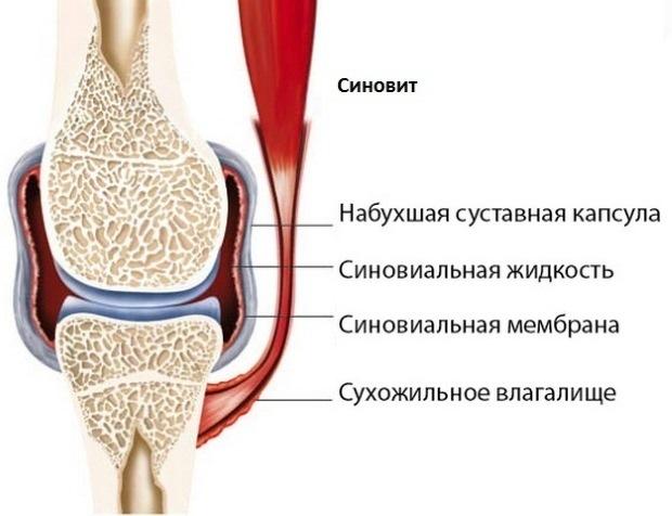 Ворсинчатый синовит: причины, симптомы и методы лечения