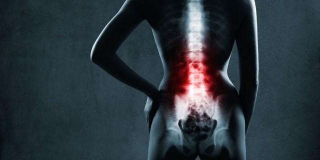 Артрит позвоночника: симптомы и лечение артрита шейного и поясничного отдела
