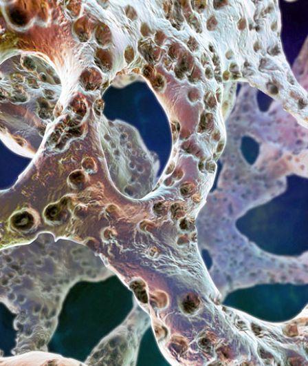 Остеопороз грудного отдела позвоночника: симптомы и лечение остеопороза позвонков