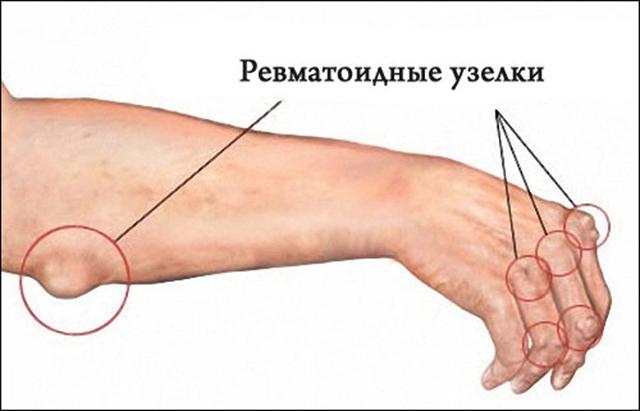 Ревматические узелки: как выглядят (ФОТО) и что значат подкожные узелки