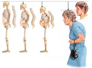Постменопаузальный остеопороз: код МКБ-10, симптомы и лечение