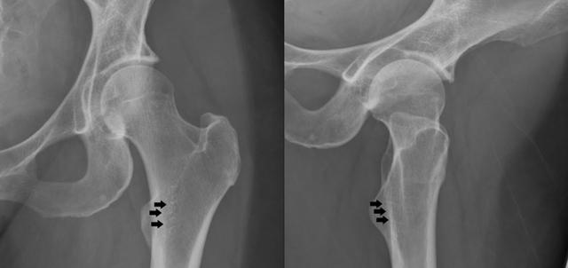 Остеопороз тазобедренного сустава: симптомы и лечение 2 и 3 степени болезни