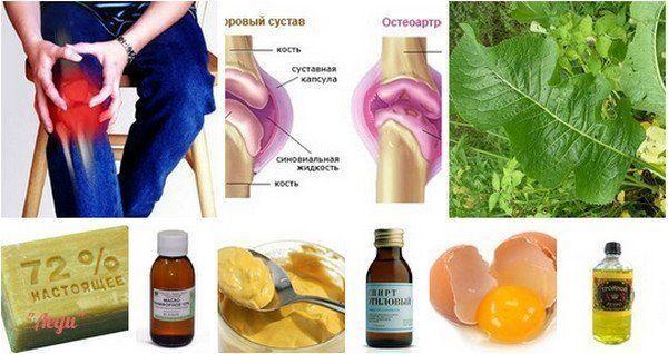 Народные средства от артрита: лечение суставов в домашних условиях