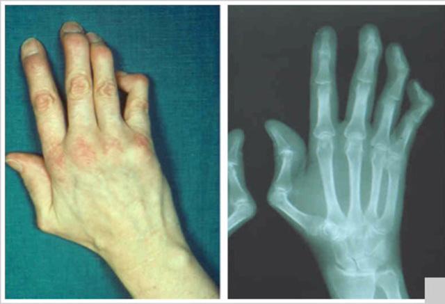 Туберкулезный артрит: симптомы и лечение у детей и взрослых