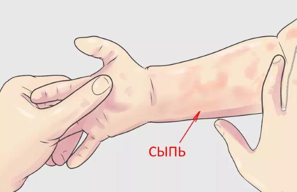 Вирусный артрит у детей и взрослых: симптомы и лечение