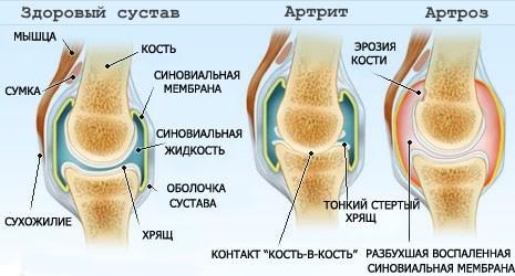 Мочегонные средства при подагре: какие диуретики можно принимать