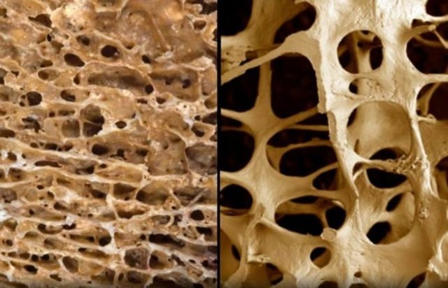 Профилактика остеопороза: препараты кальция, упражнения и диета