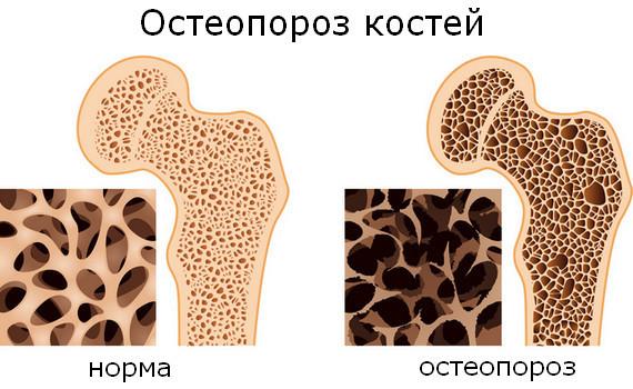 Диагностика остеопороза: анализ крови, денситометрия и другие обследования