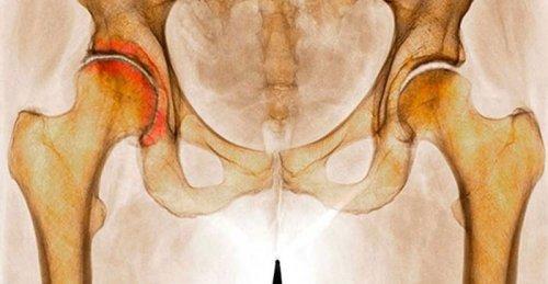 Инвалидность при коксартрозе 3 (2,4) степени: дают ли группу при артрозе тазобедренного сустава