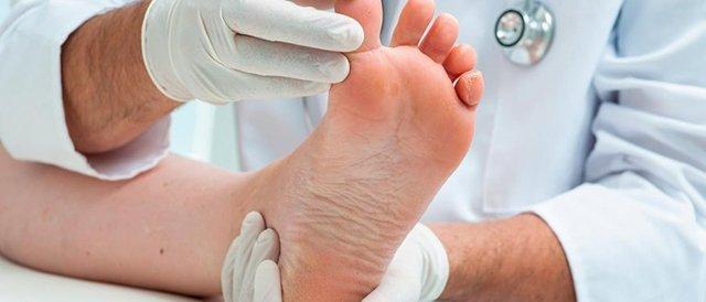 Остеопороз стопы: симптомы и лечение остеопороза ног