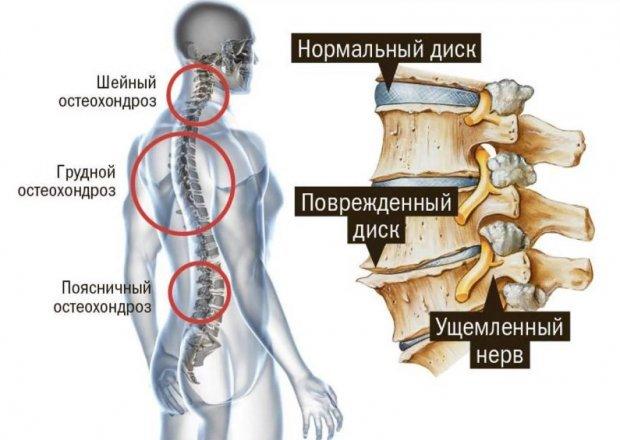 Йога при остеохондрозе шейного и грудного отдела позвоночника: лучшие асаны
