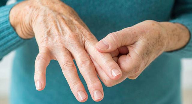 Острый артрит: причины, симптомы и способы лечения