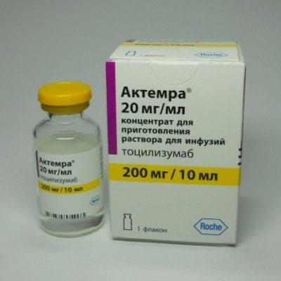 Системный артрит: особенности ревматоидного, ювенильного, псориатического артрита