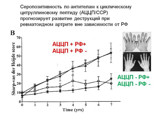 С-реактивный белок при ревматоидном артрите: показатели нормы и отклонений