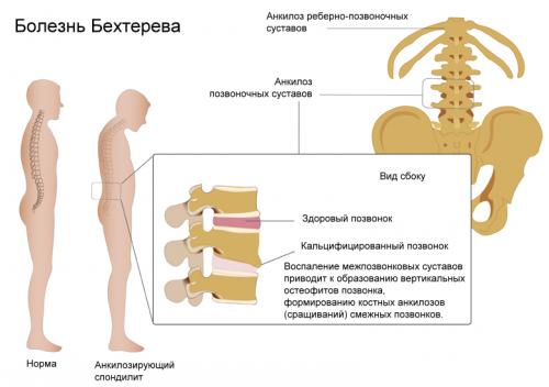 Дифференциальная диагностика болезни Бехтерева: анализ крови на СЭО и другие пробы
