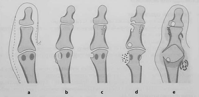 Рентген при подагре: признаки подагрического артрита на снимке