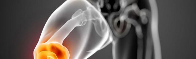 Препателлярный бурсит коленного сустава: симптомы и лечение
