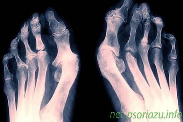 Псориазный артрит: причины, симптомы (ФОТО) и лечение