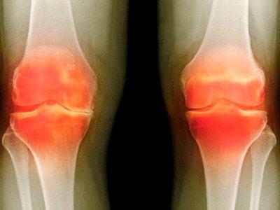 Мазь от артрита: лучшие мази и гели от воспаления суставов