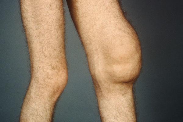 Умеренный синовит: признаки и лечение умеренно выраженного синовита