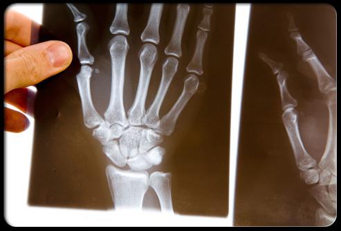Облитерирующий артрит нижних конечностей: симптомы и лечение