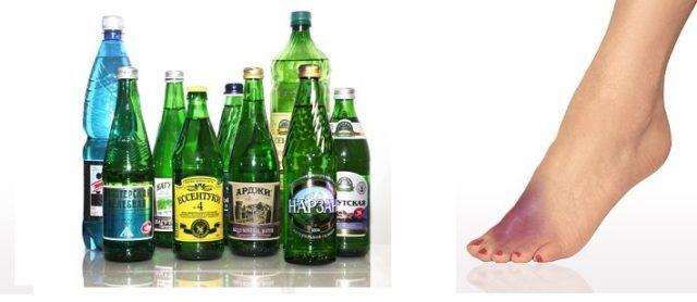 Щелочная минеральная вода при подагре: какую пить (список названий)