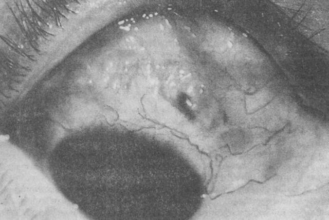 Поражения глаз при ревматоидном артрите: как болезнь влияет на глаза