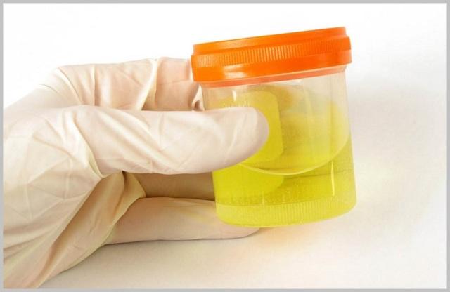 Лечение мочой суставов: компрессы и примочки от болей, отзывы о уринотерапии