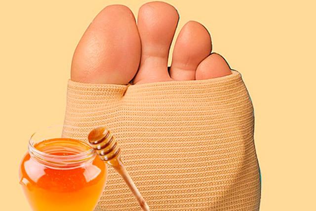 Можно ли мед при подагре: польза и вред, народные рецепты компрессов