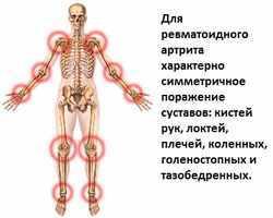 Серонегативный ревматоидный артрит: код МКБ-10, лечение и диагностика