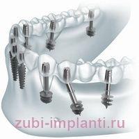 Остеопороз челюсти: симптомы и лечение, протезирование зубов и имплантация
