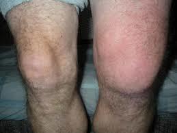 Инфекционный артрит: диагностика и методы лечения суставов
