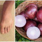 Лук и чеснок при подагре на ногах: можно ли есть зеленый и репчатый лук