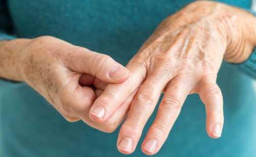 Сколько живут с артритом: прогноз продолжительности жизни
